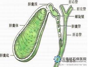 肝内胆管结石怎么治疗