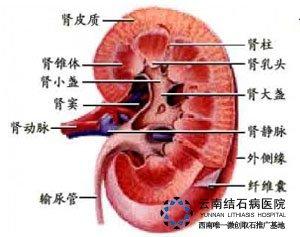 肾结石的治疗偏方 肾结石 胆结石 保胆保肾取石 亚洲专业治疗结石病的