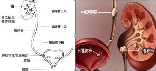 肾结石胆结石什么症状