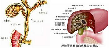 肝内胆管结石的原因,肝内胆管结石怎么治疗,肝内胆管结石能活多久