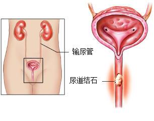 男性尿道示意图_